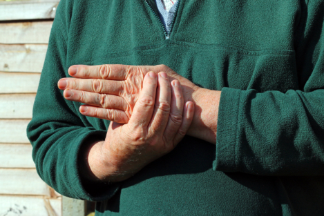 What-Can-You-Do-to-Prevent-Arthritis